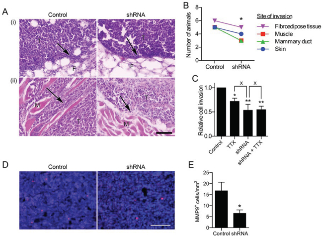 Effect of Nav1.5 on local invasion from the primary tumor.