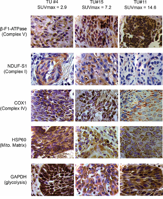 Representative immunohistochemical stainings of three HNSCCs for marker proteins quantified in this study.