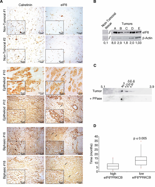 eIF6 expression and phoshorylation correlate to lower MPM patients survival.