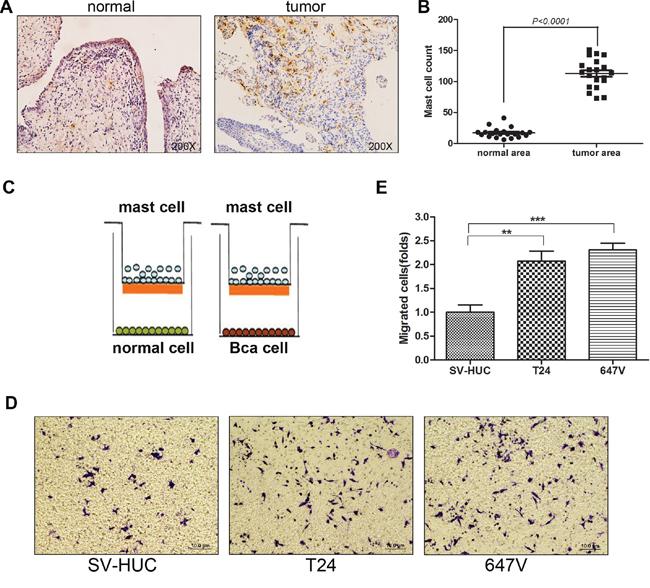 Bladder cancer tissues recruit more mast cells than non-malignant bladder tissues.