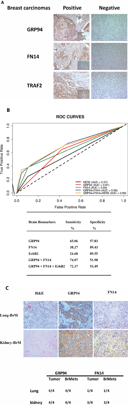GRP94 and FN14 expression predict brain metastasis progression in breast cancer patients.