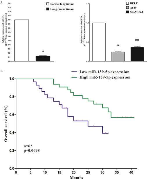 Expression miR-139-5p is significantly down-regulated in primary human lung cancer and NSCLC cell lines.