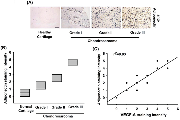 The correlation of adiponectin, VEGF-A and tumor stages in human chondrosarcoma tissues.