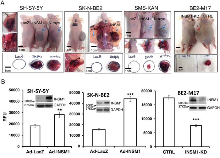 INSM1 promoted cellular invasion and enhanced tumorigenicity in NB tumors.