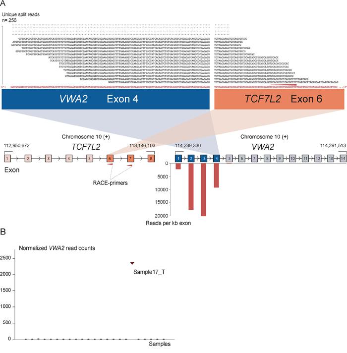 The novel fusion transcript VWA2-TCF7L2.