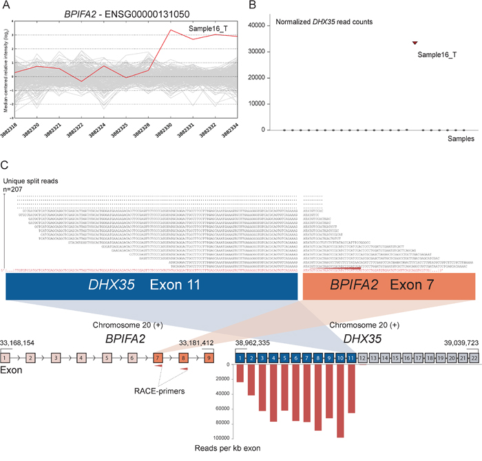Novel fusion between DHX35 and BPIFA2 is in concordance with 3′ overexpression of BPIFA2.
