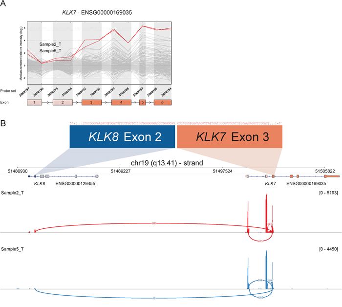 Read-through from upstream KLK8 to KLK7 in samples with deviating 3′ expression of KLK7.