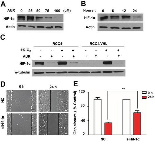 Auraptene induces HIF-1α degradation in a VHL-independent manner, and siRNA-mediated HIF-1α knockdown delays RCC4 cell migration.
