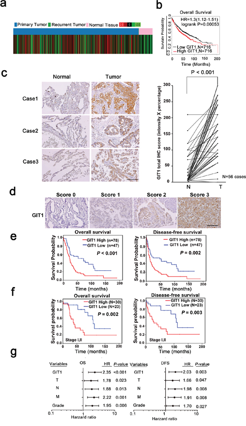 GIT1 overexpression correlates with poor prognosis in NSCLC tumors.