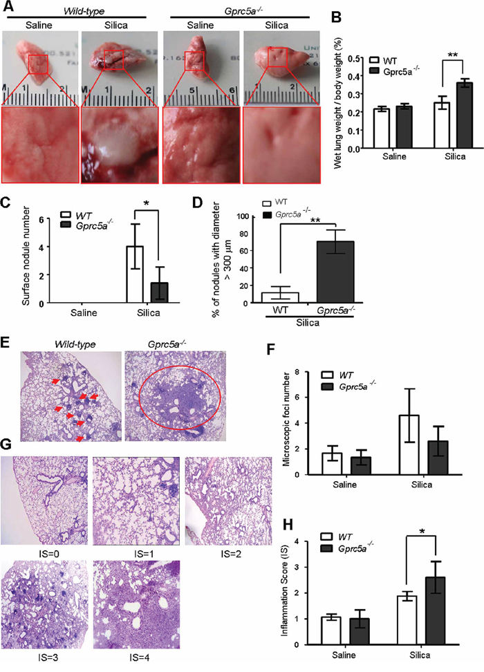 Lungs from Gprc5a−/− mice are susceptible to silica-induced edema, injury and inflammation.