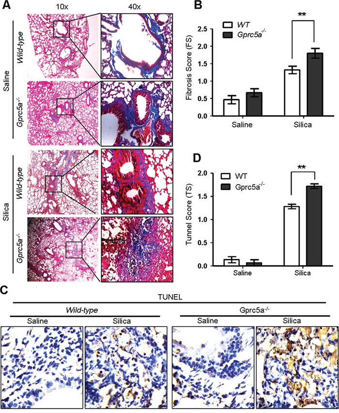 Gprc5a deficiency exacerbates the silica-induced tissue damages and fibrogenic response in mouse lungs.