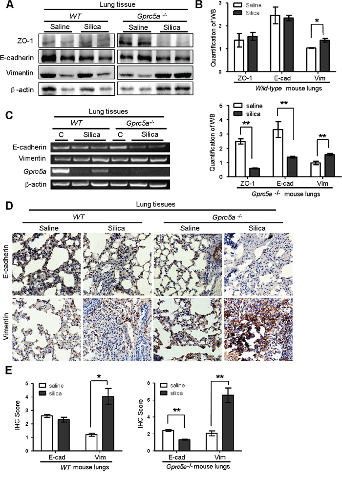 Silica exposure induces EMT characteristics in lungs from Gprc5a−/− mice in vivo.