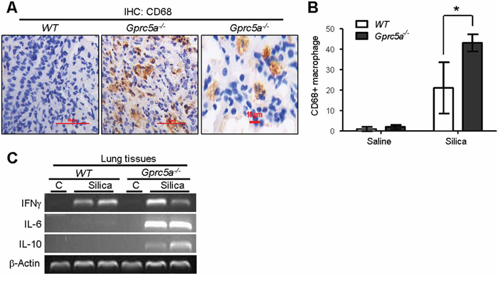 Recruitment of alveolar-macrophages was increased in lungs from Gprc5a−/− mice.