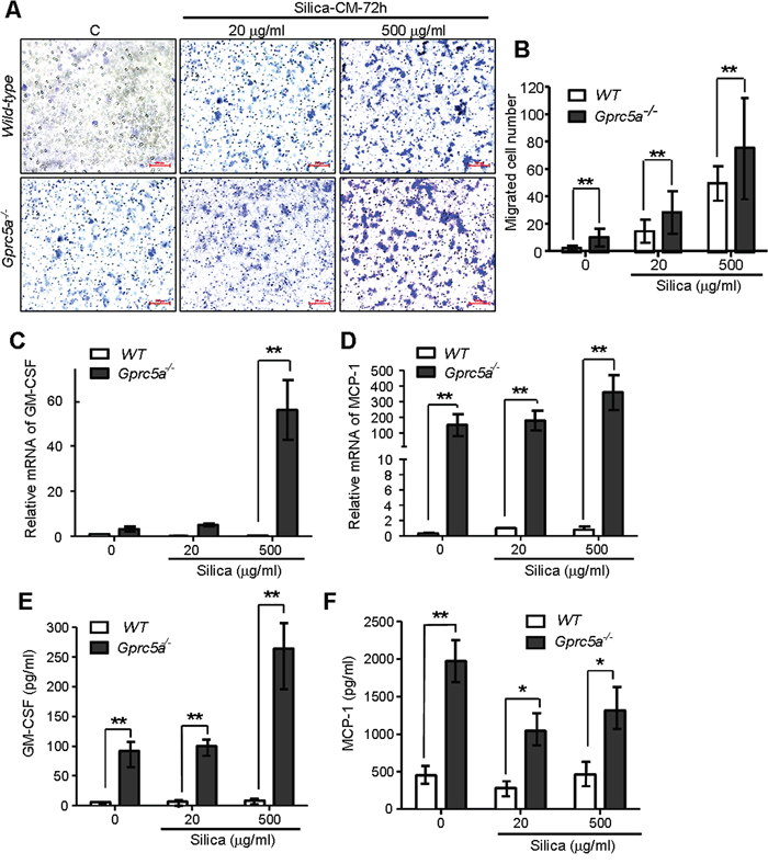 Increased production of chemokines and proinflammatory cytokines in Gprc5a−/− MTEC following silica exposure.