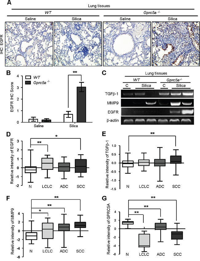 Molecular program for neoplasia coincided with those for exacerbated tissue damage and fibrogenic response in lungs from Gprc5a−/− mice following silica exposure.
