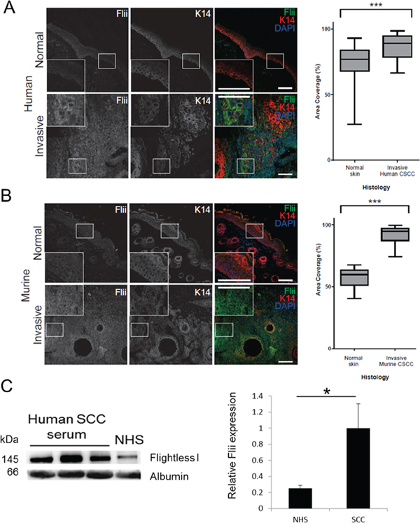 Flightless protein levels are increased in invasive cutaneous SCC.
