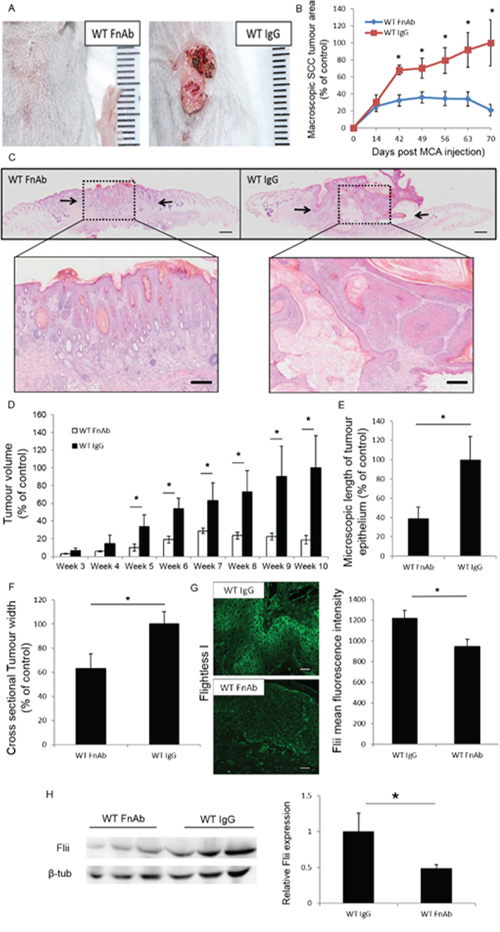 Reducing Flii expression during SCC initiation and development using FnAb results in decreased SCC progression.