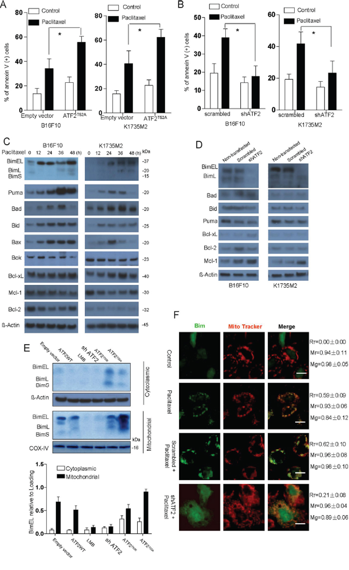 ATF2-associated apoptosis in B16F10 and K1735M2 cells is mainly dependent on Bim.