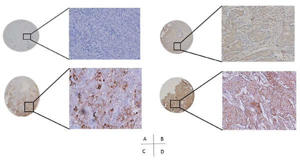 PD-L1 expression in breast cancer tissues (A, PD-L1 negative; B, C&D, PD-L1 positive).