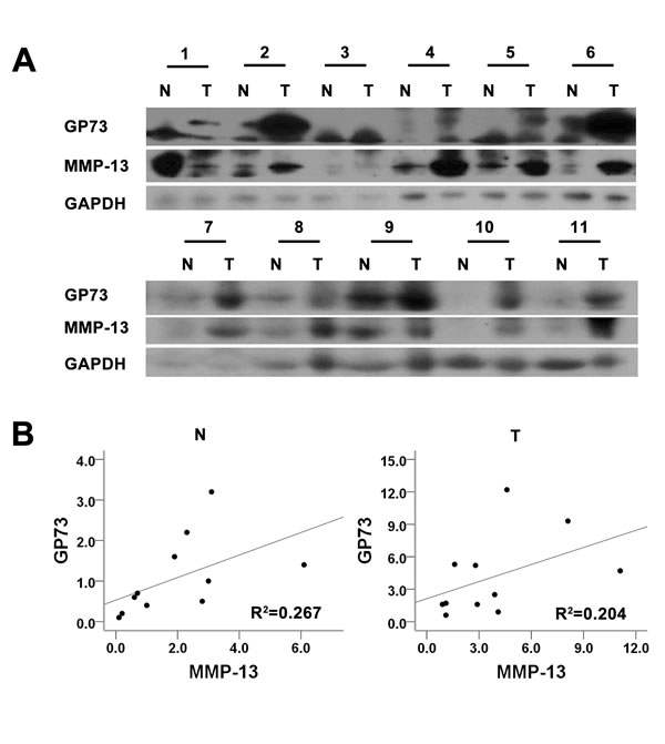 GP73 and MMP-13 are up-regulated in HCC tissues.