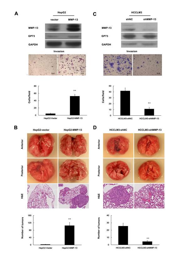 MMP-13 enhances invasion and metastasis of HCC cells.