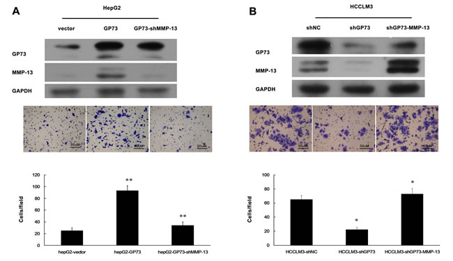 GP73 promotes HCC cell invasion through upregulation of MMP-13 expression.