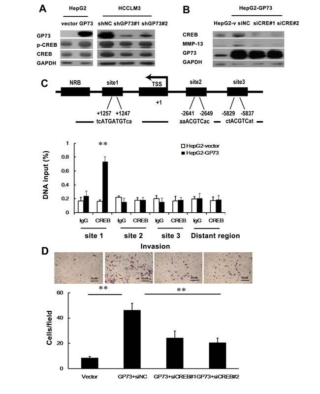 GP73-mediated CREB transactivation of MMP-13 expression.