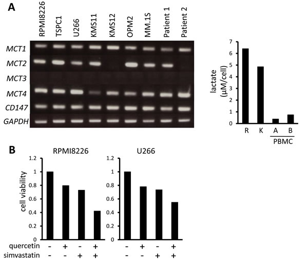 MCT expression and cytotoxic effects of MCT blockade on MM cells.