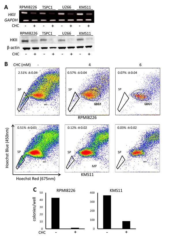Effects of MCT blockade on hexokinase II expression and MM progenitors.