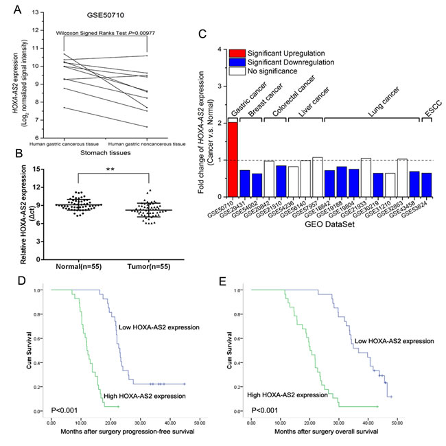Relative HOXA-AS2 expression in GC tissues and its clinical significance.