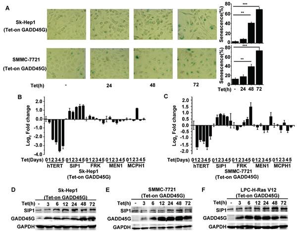 SIP1 activation in GADD45G-induced tumor cell senescence.