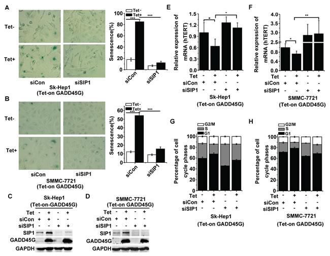 SIP1 inhibition attenuates GADD45G-induced tumor cell senescence
