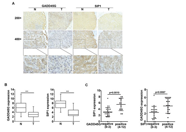Expression levels of GADD45G and SIP1 were coincidently downregulated in human hepatocellular carcinoma.