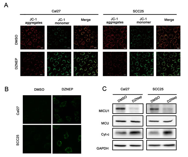 Targeting EZH2 affected mitochondrial membrane potential balance.