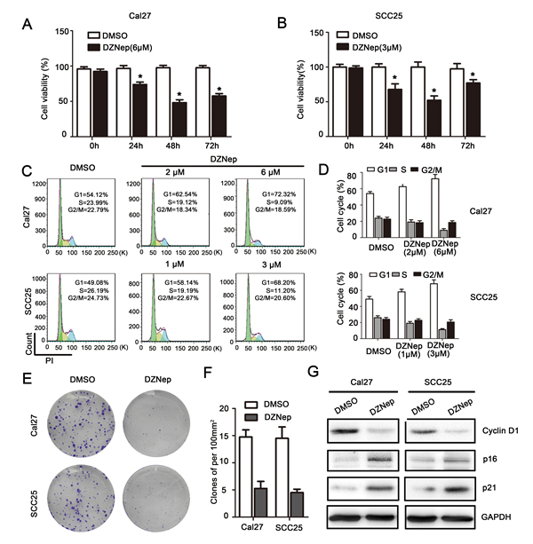 EZH2 was required for growth of HNSCC