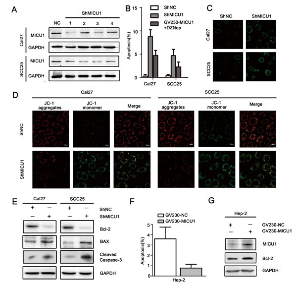 MICU1 regulated HNSCC cell apoptosis