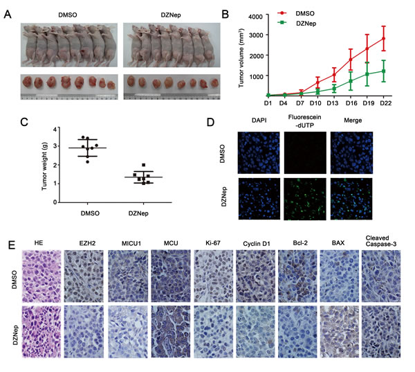 Targeting EZH2 inhibited HNSCC tumor growth and induced apoptosis