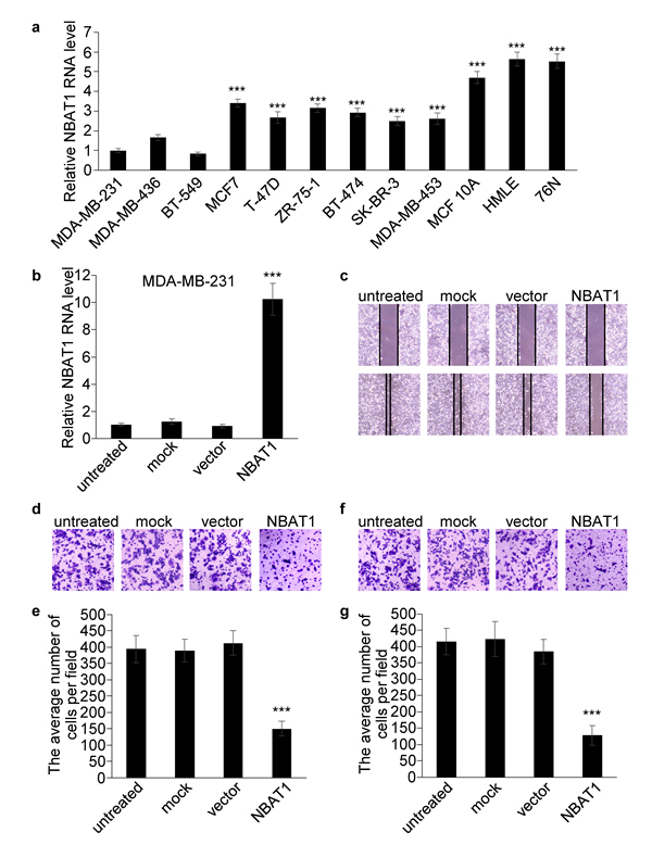 Over-expression NBAT1 inhibits the migration and invasion of MDA-MB-231.