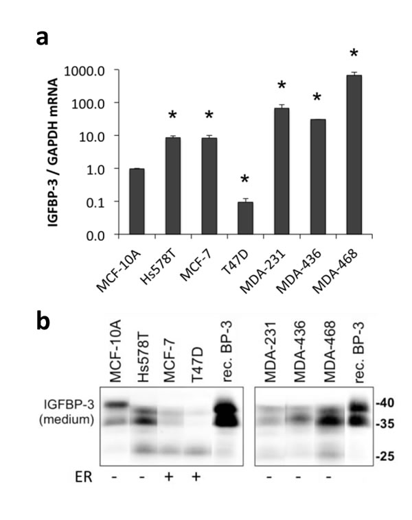 IGFBP-3 expression in breast cell lines.
