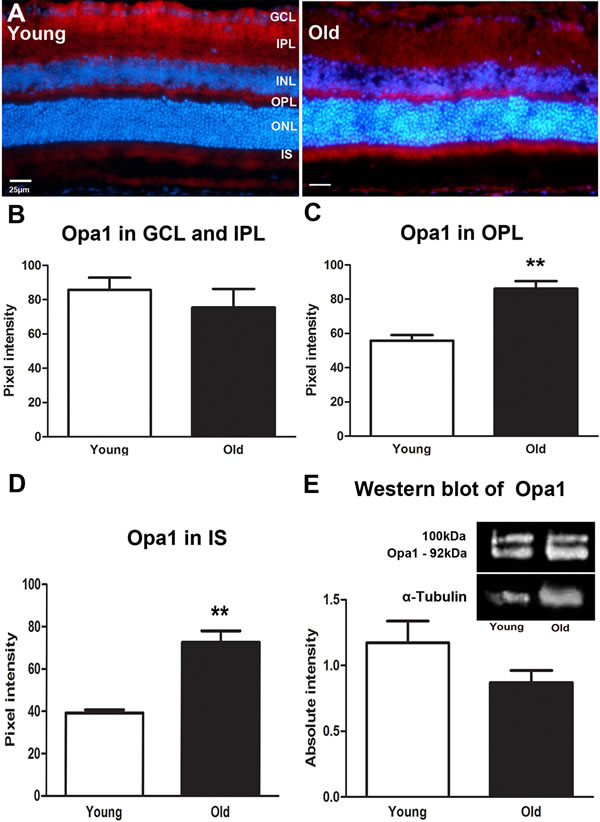 Changes in levels and distribution of mitochondrial fusion proteins in the ageing retina of C57BL/6 mice.