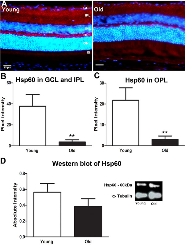 Changes in levels of mitochondrial stress marker Hsp60 in the ageing retina of C57BL/6 mice.