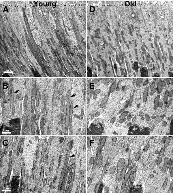 Changes in the morphology of mitochondria in ageing.