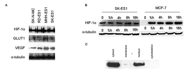 Expression of HIF-1α and its targets in ES.