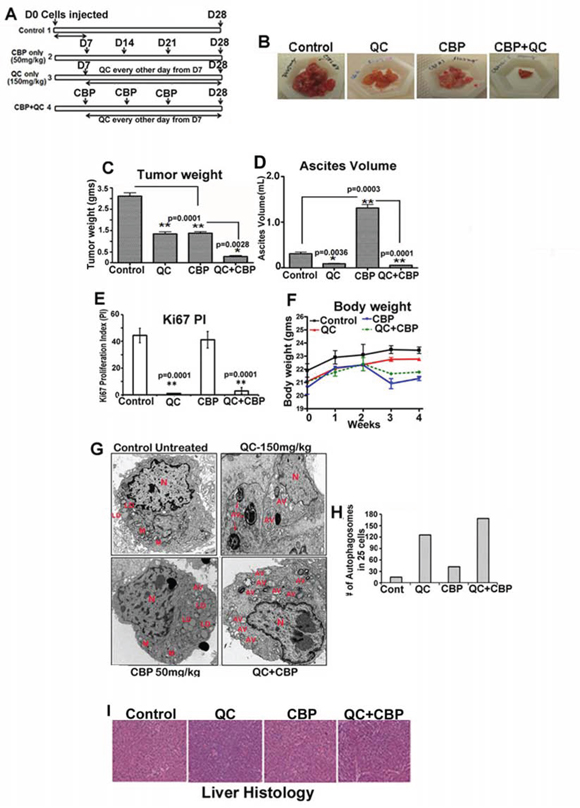 Quinacrine inhibits ovarian tumor growth in vivo A.