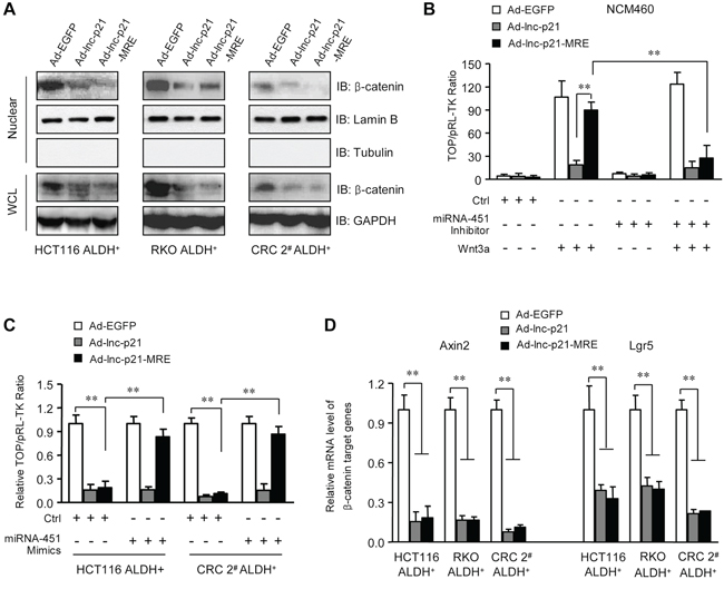 Ad-lnc-p21-MRE suppresses the activity of Wnt/β-catenin pathway in ALDH+ CSC in a miR-451-regulated manner.