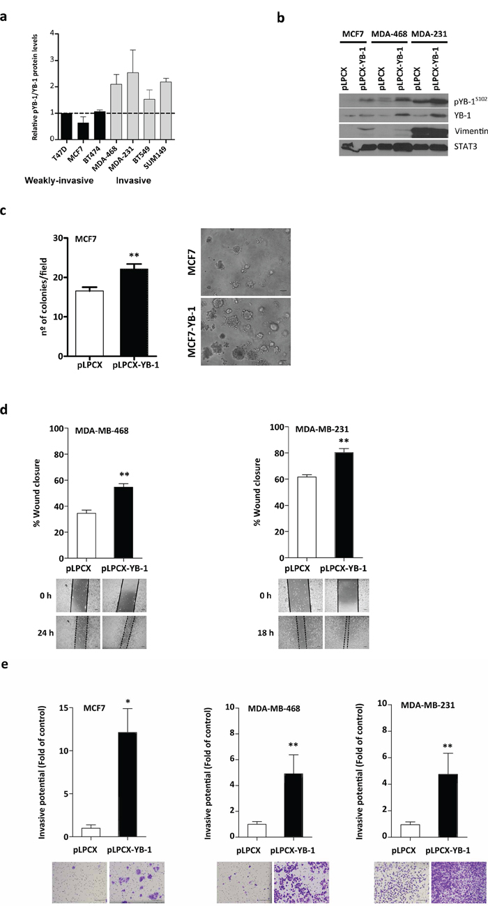 YB-1 promotes migration and invasion in breast cancer cells.