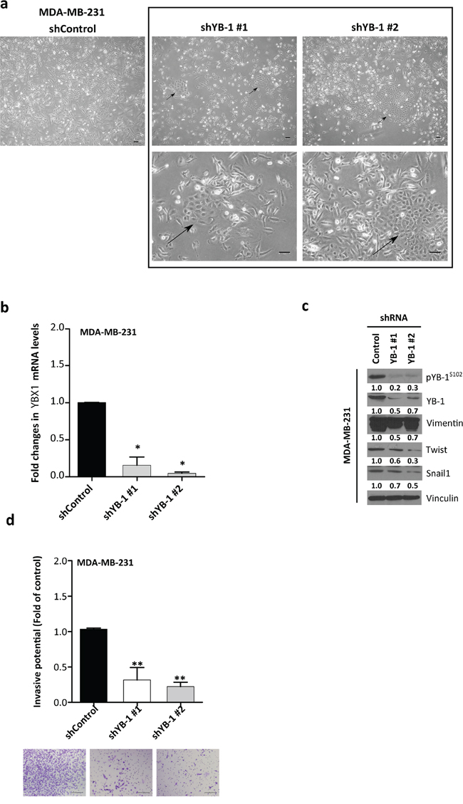 YB-1 knockdown reverses EMT features toward a more epithelial-like phenotype in MDA-MB-231 cells.