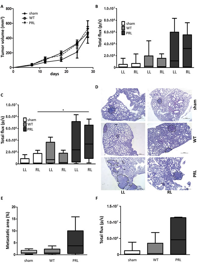 Impact of partial lung irradiation on lung-specific breast cancer metastasis in a syngeneic mouse model.
