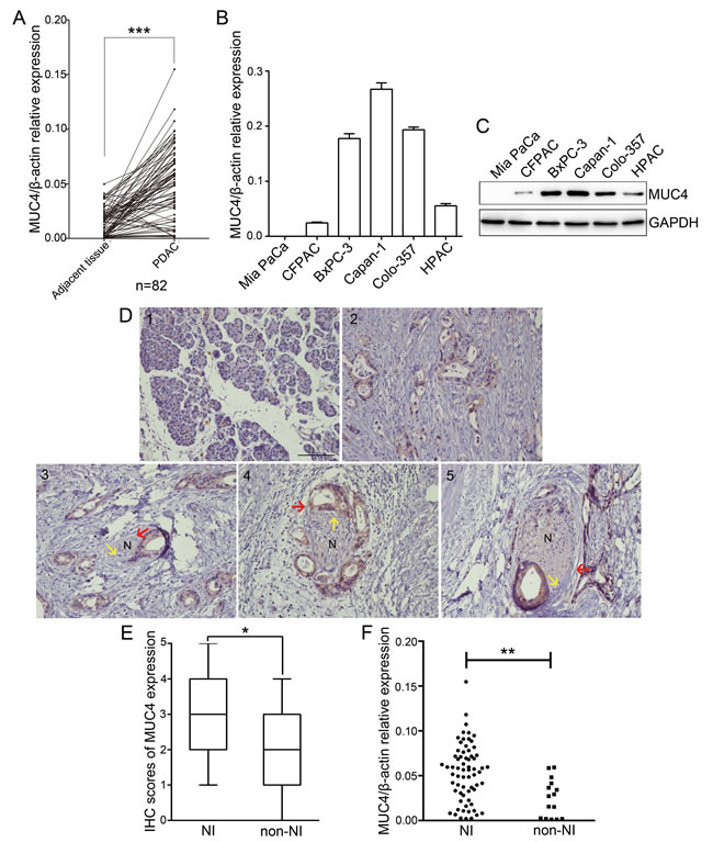 MUC4 expression is increased in PDAC and correlates with NI.