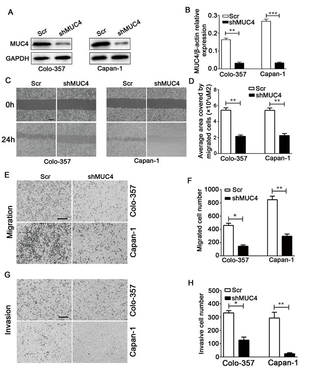 MUC4 knockdown inhibits the migration and invasion of PDAC cells